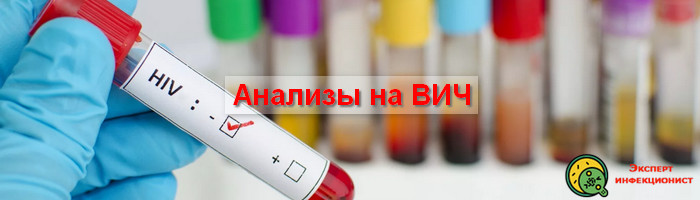 Photo of Кому требуется и где сдать анализы на ВИЧ