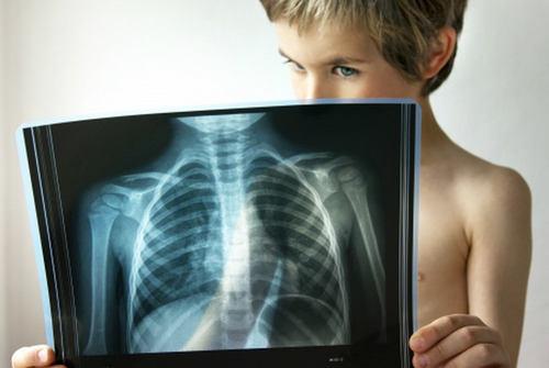 Стрептококковая пневмония - симптомы
