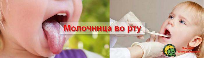 Photo of Запомните – молочница во рту имеет осложнения