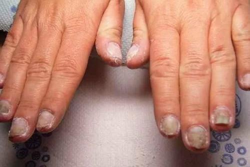Кандидоз рук, ногтей и стоп
