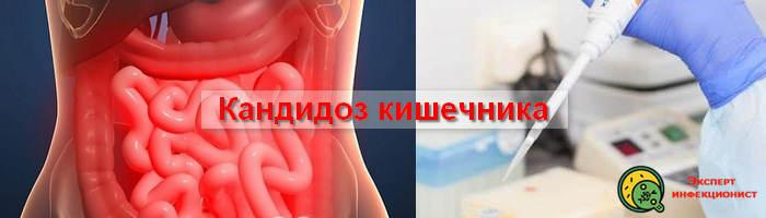 Photo of Кандидоз кишечника – симптомы и методы лечения