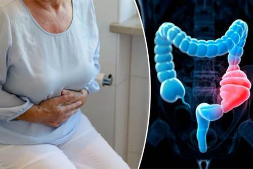 Кандидоз кишечника - симптомы