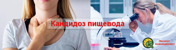 Photo of Особенности и лечение кандидоза пищевода