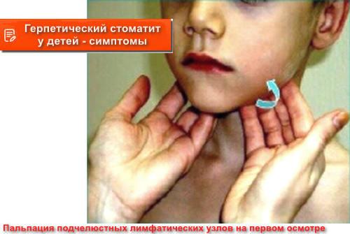 герпетический стоматит у детей - симптомы