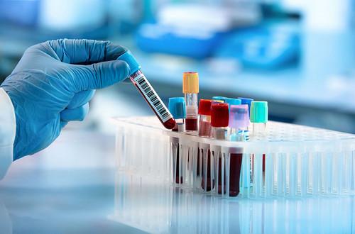 Анализ крови на моноцитоз