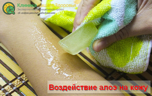 Воздействие алоэ на кожу, поражённую высыпаниями