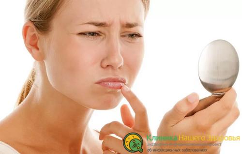 Нужно ли идти к врачу с герпесом на губах