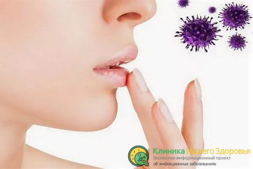 Гомеопатия при герпесе на губах