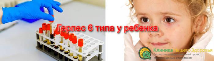 герпес 6 типа у ребенка