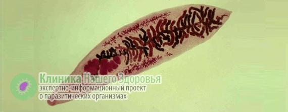 Двуустка: виды, возбудители и пути заражения фасциолезом, лечение