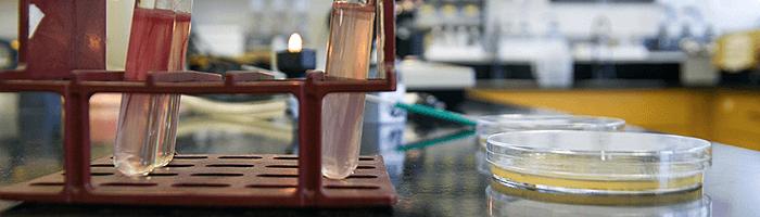 Особенности и методы анализа на антитела к аскаридам