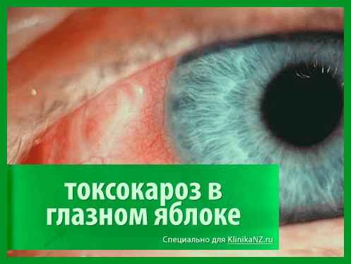 Токсокароз: виды, последствия, диагностика токсокары и лечение