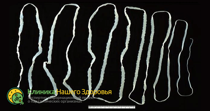 Ленточные черви (цестоды): виды, строение и жизненный цикл