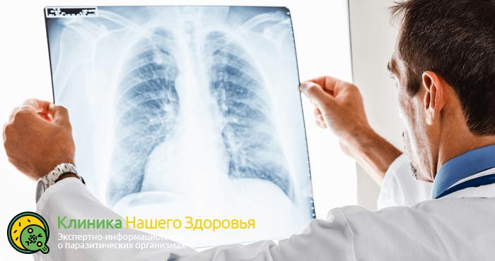 Глисты в легких у человека: симптомы, диагностика и лечение
