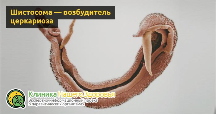 Церкариоз: описание, симптомы и лечение «зуда купальщика»