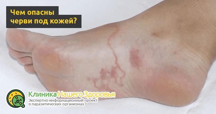 паразиты под кожей человека на ногах