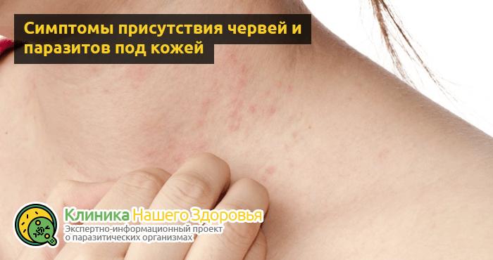 симптомы присутствия паразитов в организме человека