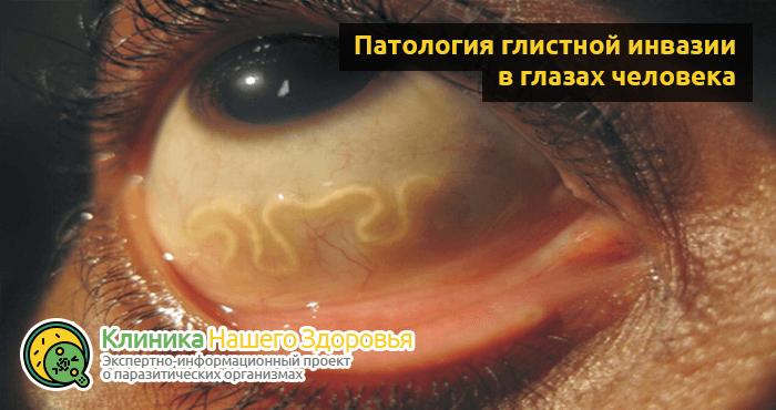 Чем травить глистов у человека профилактика
