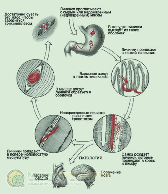 Паразиты в мышцах человека: симптомы, диагностика и лечение