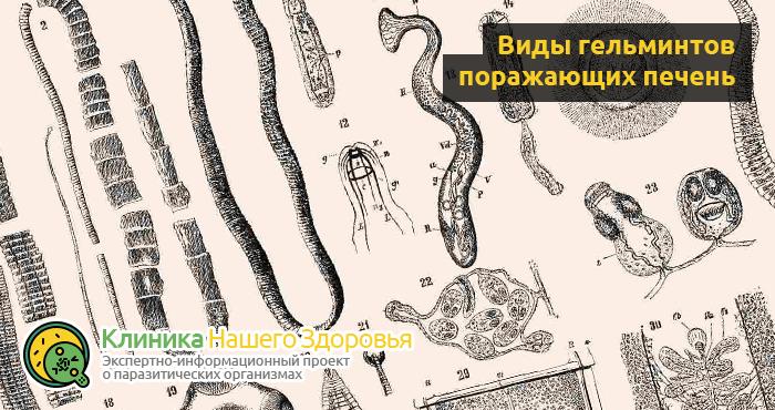 паразиты в печени человека фото