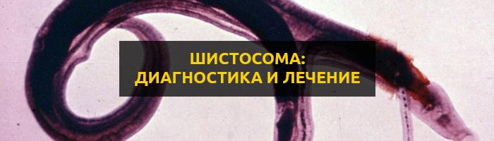Шистосома: описание гельминта, симптомы, диагностика и лечение