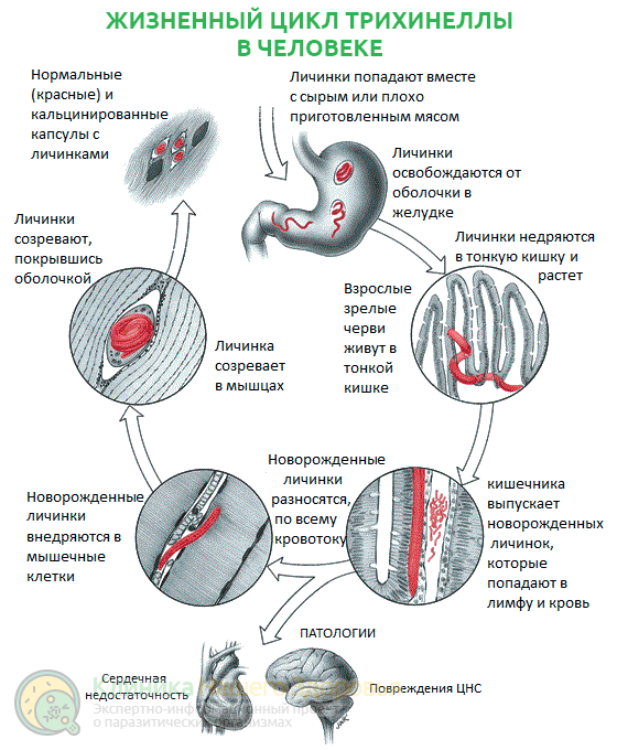 Трихинелла: жизненный цикл, симптомы, диагностика и лечение