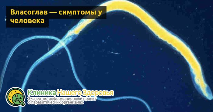 Власоглав: диагностика, симптомы и лечение человека от паразита