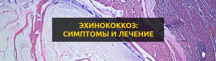 Эхинококкоз: симптомы, диагностика и лечение заболевания