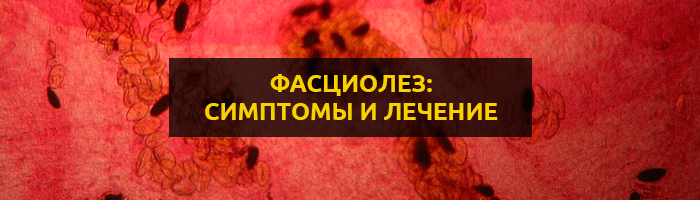 Фасциолез: симптомы, диагностика и лечение заболевания