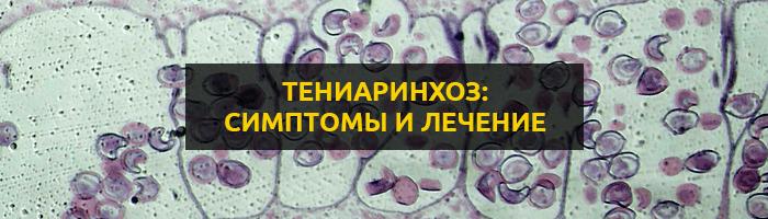 тениаринхоз