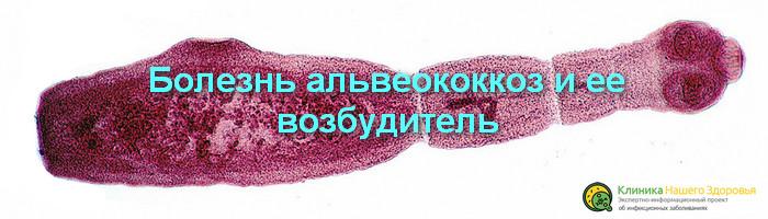 альвеококкоз