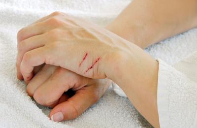 болезнь кошачьих царапин симптомы