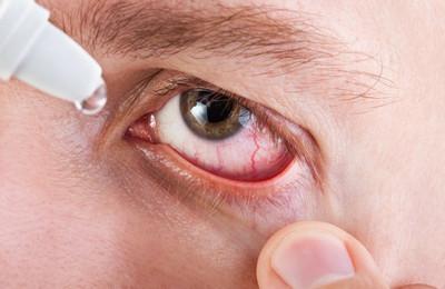 герпес-вирусный конъюнктивит лечение