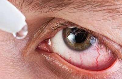 аллергический конъюнктивит капли для глаз