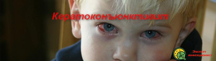 кератоконъюнктивит