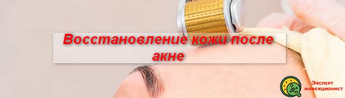 восстановление кожи после акне
