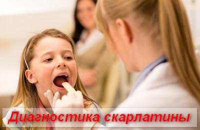 диагностика скарлатины