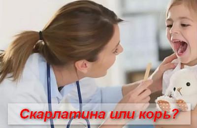 скарлатина или корь