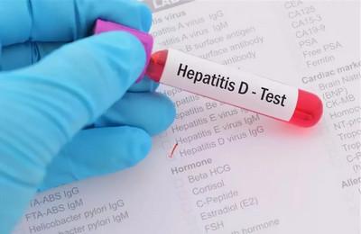 диагностика гепатита Д