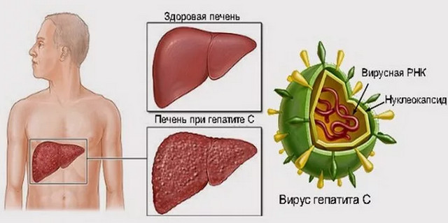 особенности гепатита С