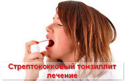 стрептококковый тонзиллит лечение