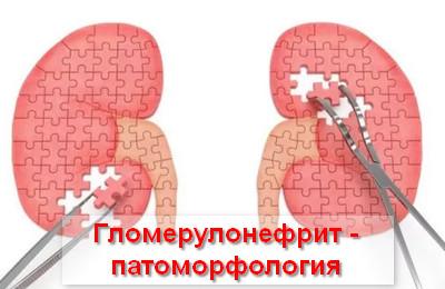гломерулонефрит - патоморфология